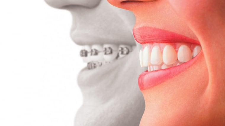 Invisalign: The Key To A Beautiful Smile
